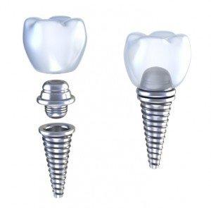 Dental-Crowns-300x295
