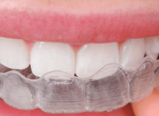 Waterloo Dentist - Erbsville Dental - Invisalign or clear aligners