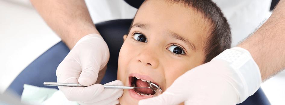 wisdom-teeth-removal
