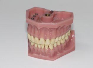 Waterloo Dentist - Erbsville Dental - Partial Dentures