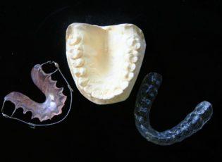 mouth guard & appliance in waterloo - waterloo dentist - erbsville dental
