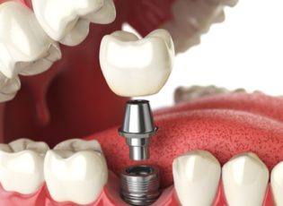 dental implant treatments waterloo - Dr. Stephen Mathews - Waterloo Dentist